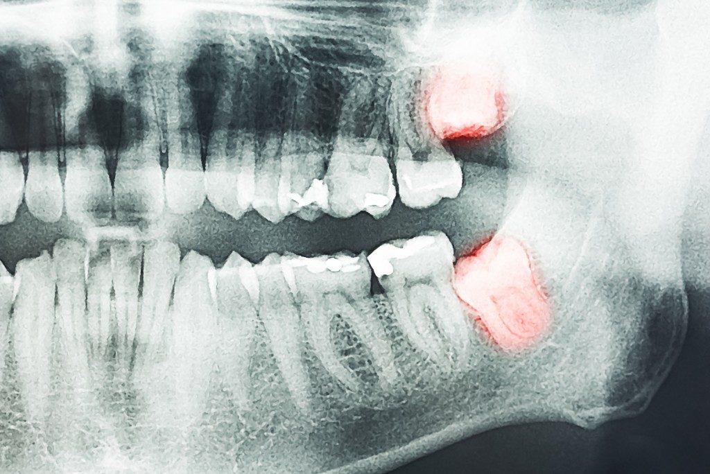 wisom teeth