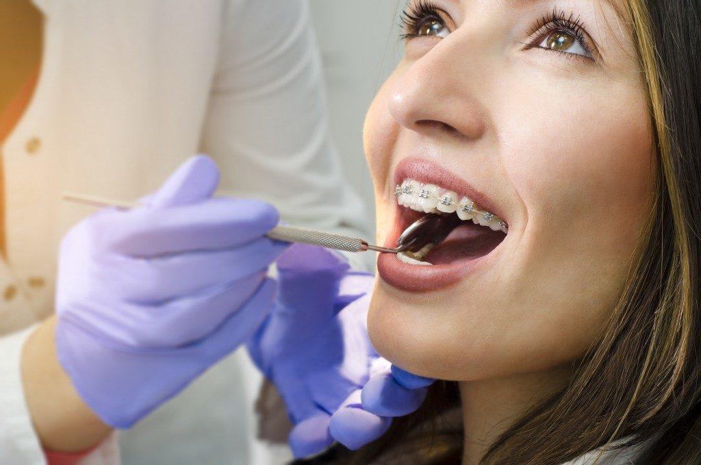 Dental braces check up