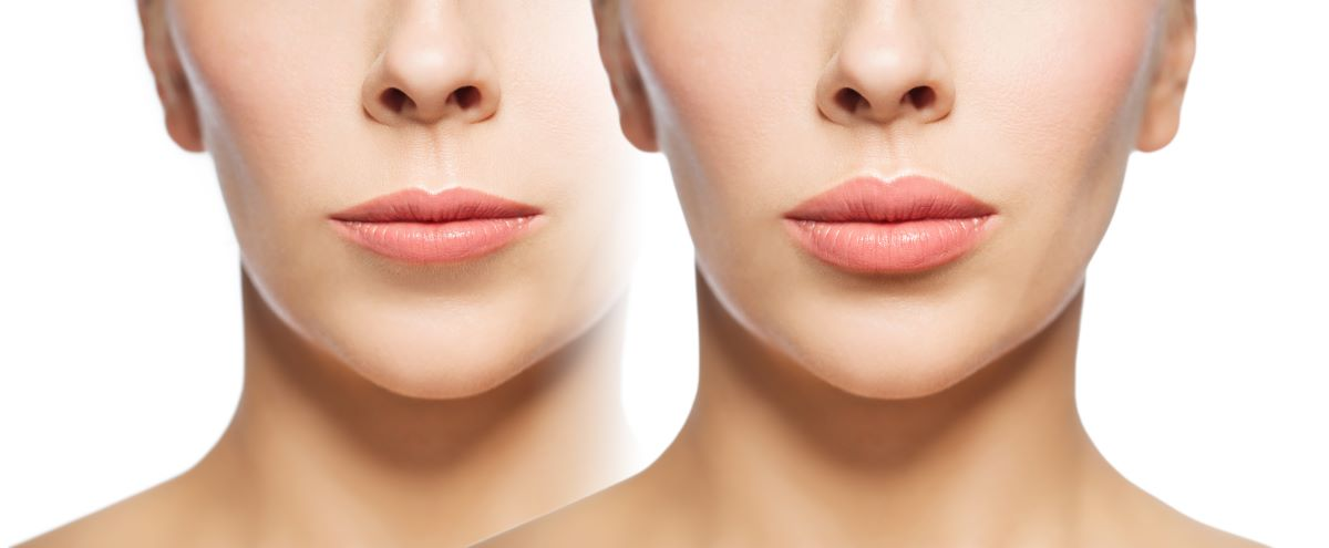 changes after cosmetic procedure