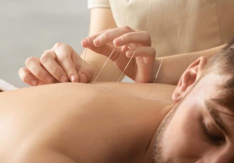 man receiving acupuncture therapy